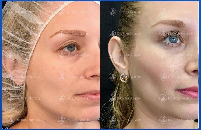 316-cirugia-nariz-monterrey-rinoplastia-roel-moyeda Mejillas Caso #5: Cirugía de Bichat