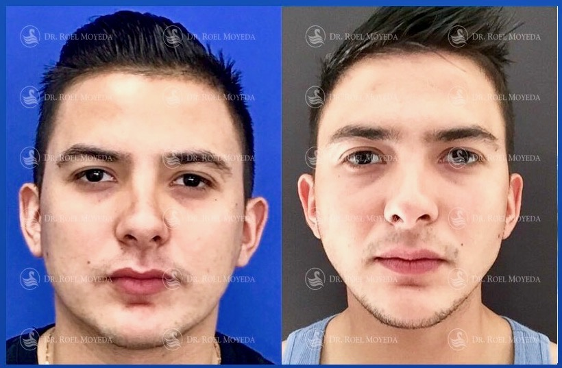 bichectomia-en-monterrey-resultados Bichectomia en Monterrey