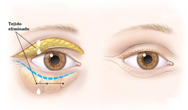 blefaroplastia-cirugia-de-parpados Blefaroplastia en Monterrey / Cirugía de Párpados