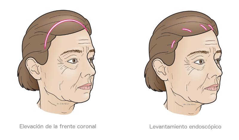 levantamiento-de-cejas1 Levantamiento de cejas en Monterrey