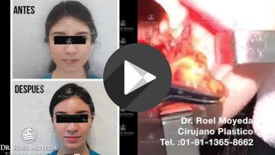 Bolsas-de-Bichat-1-400x225 Videos