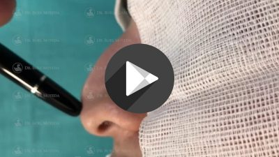 Cirugia-Estetica-de-Nariz-400x225 Videos
