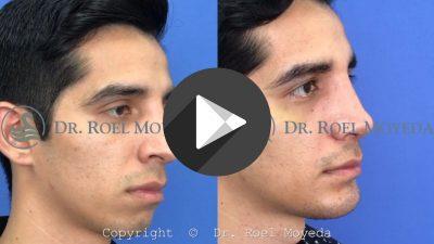 Cirugia-de-Perfil-Facial-400x225 Videos
