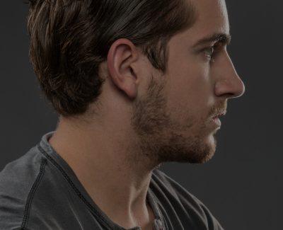 Cirugia-de-Perfil-Menton-e-Implantes-Faciales-400x325 Estética Facial