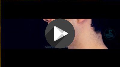 Implantes-de-Angulo-Mandibular-y-de-Menton-400x225 Videos