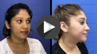 Rinoplastia-Estetica-400x225 Videos