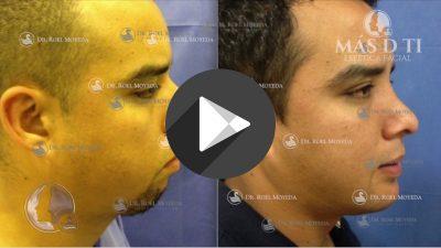 Rinoplastia-Estetica-en-Rinocifosis-e-Implante-de-Menton-400x225 Videos