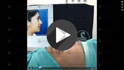 Rinoplastia-estetica-primaria-Tecnica-cerrada-400x225 Videos