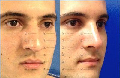 234-cirugia-nariz-monterrey-rinoplastia-roel-moyeda-400x260 Casos de Rinoplastia Estética