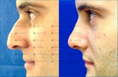 235-cirugia-nariz-monterrey-rinoplastia-roel-moyeda-400x260 Casos de Rinoplastia Estética