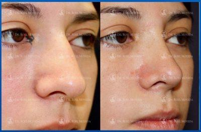 236-cirugia-nariz-monterrey-rinoplastia-roel-moyeda-400x263 Casos de Rinoplastia Estética