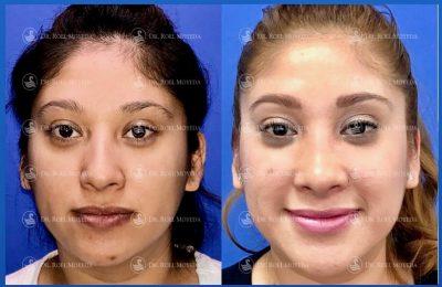 241-cirugia-nariz-monterrey-rinoplastia-roel-moyeda-400x260 Casos de Rinoplastia Estética