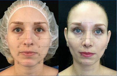 247-cirugia-nariz-monterrey-rinoplastia-roel-moyeda-400x261 Casos de Rinoplastia Estética