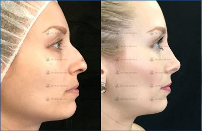 249-cirugia-nariz-monterrey-rinoplastia-roel-moyeda-400x260 Casos de Rinoplastia Estética