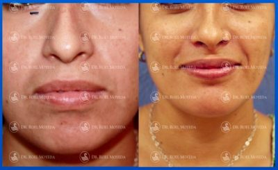 268-cirugia-nariz-monterrey-rinoplastia-roel-moyeda-400x245 Casos de Perfiloplastia