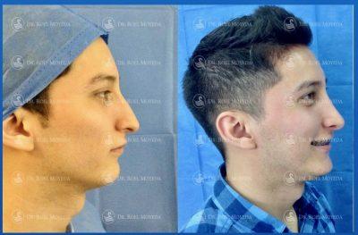 272-cirugia-nariz-monterrey-rinoplastia-roel-moyeda-400x263 Casos de Perfiloplastia