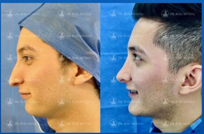 273-cirugia-nariz-monterrey-rinoplastia-roel-moyeda-400x263 Casos de Perfiloplastia