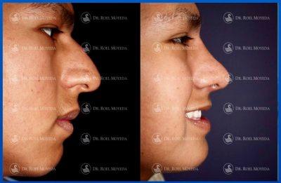 274-cirugia-nariz-monterrey-rinoplastia-roel-moyeda-400x261 Casos de Perfiloplastia