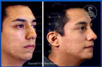 277-cirugia-nariz-monterrey-rinoplastia-roel-moyeda-400x264 Casos de Perfiloplastia