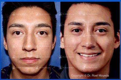 278-cirugia-nariz-monterrey-rinoplastia-roel-moyeda-400x265 Casos de Perfiloplastia