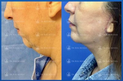 287-cirugia-nariz-monterrey-rinoplastia-roel-moyeda-400x262 Casos de Cirugía Plástica de la Edad