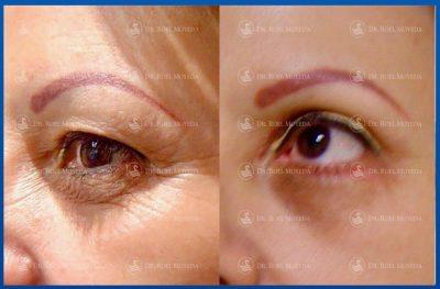 290-cirugia-nariz-monterrey-rinoplastia-roel-moyeda-400x263 Casos de Cirugía Plástica de la Edad