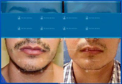 291-cirugia-nariz-monterrey-rinoplastia-roel-moyeda-400x274 Casos de Implantes Mandibulares