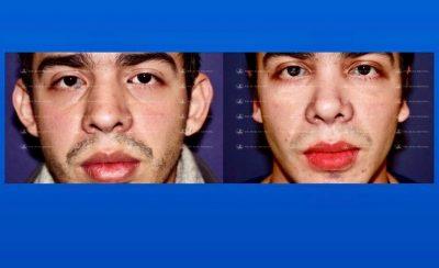296-cirugia-nariz-monterrey-rinoplastia-roel-moyeda-400x244 Casos de Otoplastia