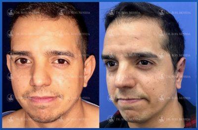 298-cirugia-nariz-monterrey-rinoplastia-roel-moyeda-400x263 Casos de Otoplastia