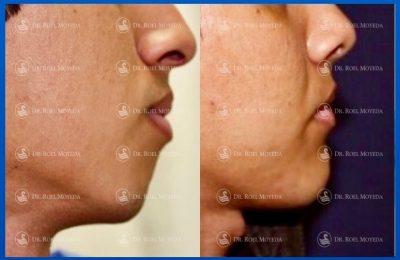 307-cirugia-nariz-monterrey-rinoplastia-roel-moyeda-400x260 Portada