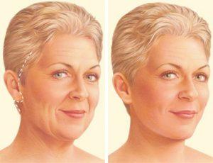 De la reducir facial de estiramiento después la Cómo hinchazón cirugía